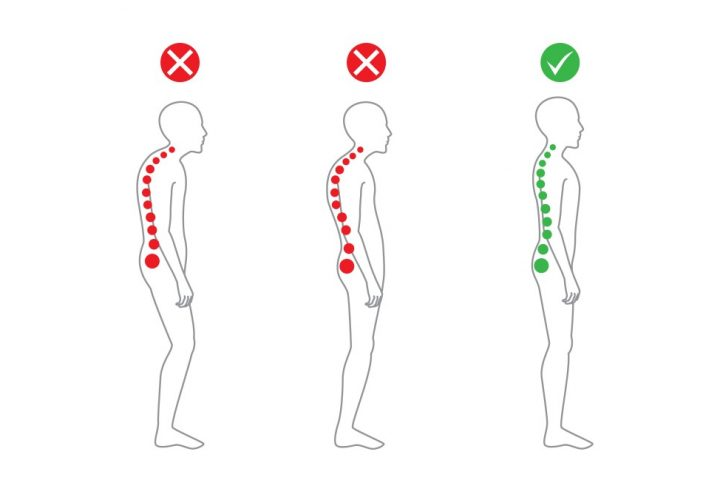 posture advice from our London chiropractor